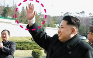 Tin tức trong ngày - Rộ tin ông Kim Jong-un bị chấn thương cổ tay