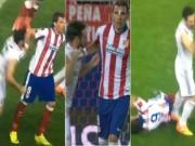 Video bóng đá hot - Học Suarez cắn người, sao Real nguy cơ bị phạt nặng