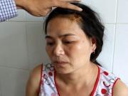 An ninh Xã hội - Đánh vợ nhập viện vì nghi ngoại tình