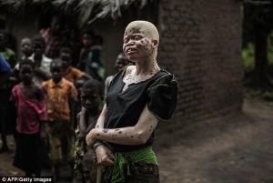 Tin tức trong ngày - Chùm ảnh: Cuộc đời bị săn đuổi của người bạch tạng
