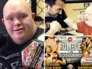 Thể thao - Cảm động: Thanh niên bị Down hạ cựu võ sĩ UFC