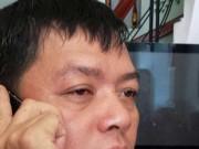 An ninh Xã hội - Ngồi trước sân nhà, một chủ doanh nghiệp bị tạt axit