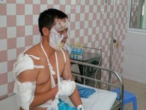 Tin tức Việt Nam - Cháy nổ kho hóa chất, 17 chiến sĩ PCCC bị thương