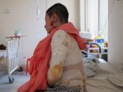 Cảnh giác - TP HCM: Đang đi trên đường, nữ công nhân bị tạt axit
