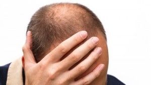 Sức khỏe đời sống - Hói đầu và ung thư tuyến tiền liệt: Có liên quan!