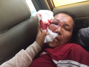 An ninh Xã hội - Cả nhà công an xã đánh một phụ nữ ngất xỉu để đòi nợ