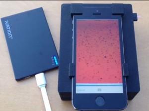 Sức khỏe đời sống - Điện thoại Iphone 5S phát hiện ký sinh trùng trong máu