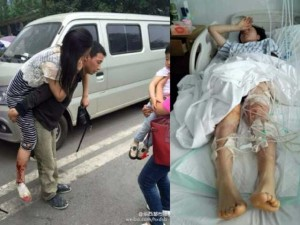 Tin tức trong ngày - TQ: Bảo vệ con, bà mẹ bị chó dữ cắn suýt mất mạng
