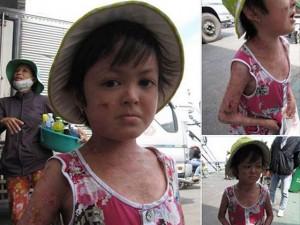 Tin tức trong ngày - Thực hư vụ cháu bé bị đổ nước sôi vào người để ăn xin
