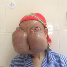 """Sức khỏe đời sống - Người phụ nữ """"đeo"""" 2 khối u khổng lồ trên mặt"""