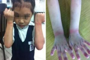 Bạn trẻ - Cuộc sống - Phẫn nộ cô giáo trói tay học sinh vì nghi trộm tẩy của bạn