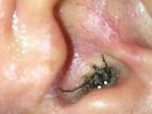 Phi thường - kỳ quặc - Hốt hoảng vì nhện làm tổ trong lỗ tai người