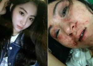 Nữ ca sỹ Hoa xinh đẹp bị đánh đến biến dạng