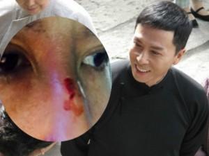 """Phim - Chân Tử Đan bị dập mũi vì """"say"""" đánh đấm"""