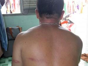 An ninh Xã hội - Bị đánh tét đầu vì từ chối ngồi ghế bãi biển