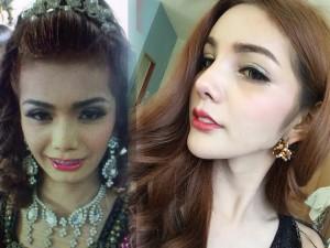 Làm đẹp - Cô gái Thái hóa mỹ nhân sau khi nâng mũi, làm răng