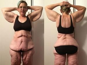 Choáng với da thừa chảy xệ đáng sợ sau khi giảm cân