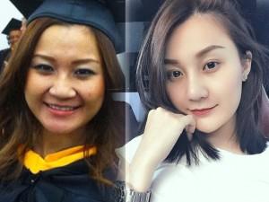 """Làm đẹp - Cô gái Thái Lan hóa """"thiên nga"""" nhờ tiêm trắng da"""