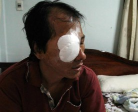 Tin tức Việt Nam - Tài xế bị ném đá trúng mắt kể lại đêm kinh hoàng