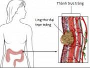 Sức khỏe đời sống - 6 cách giảm nguy cơ bị ung thư trực tràng