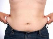 Sức khỏe đời sống - Cách đối phó với da thừa cực hiệu quả sau khi giảm cân