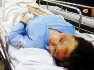 Tâm thư của nữ sinh bị tạt axit mù mắt giữa Sài Gòn