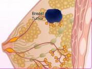 Sức khỏe đời sống - Bị ngứa đầu nhũ hoa, đi khám phát hiện bị ung thư vú
