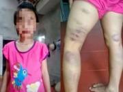 Giáo dục - du học - Phẫn nộ cô giáo bạo hành học sinh vì... viết sai chính tả