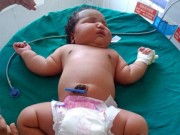 Sức khỏe đời sống - Bé gái sơ sinh 6,8kg nặng nhất thế giới chào đời