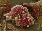 Sức khỏe đời sống - Sự phá huỷ tàn khốc của tế bào ung thư