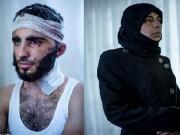 """Thế giới - Ảnh nạn nhân của IS chụp sau khi bị tra tấn, """"dính"""" đạn"""