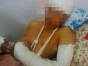 An ninh Xã hội - Đi xin lỗi, nam thanh niên bị chém lìa cánh tay