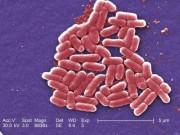 """Sức khỏe đời sống - Ác mộng """"siêu vi khuẩn"""" kháng mọi loại kháng sinh"""