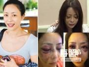 Phim - 6 mỹ nhân Hoa bị chồng đại gia đánh không thương tiếc