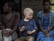 Phi thường - kỳ quặc - Nạn săn người bạch tạng lấy xương man rợ ở Malawi