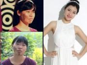 Làm đẹp - 2 cô gái miền Bắc đổi đời nhờ xóa chàm, chữa hô