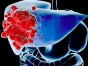 Sức khỏe đời sống - Nhận biết 6 dấu hiệu ung thư gan trước khi quá muộn