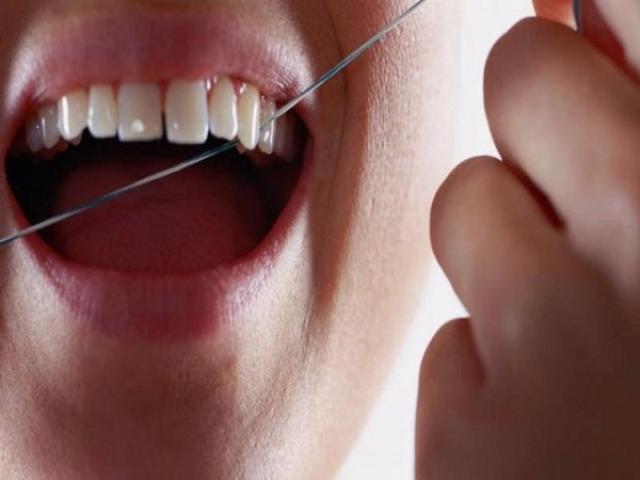 Vệ sinh răng miệng kém có thể gây ra ung thư phổi, ung thư đại tràng - 2