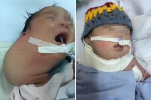 Sức khỏe đời sống - Phẫu thuật lấy khối u khổng lồ trên cổ trẻ sơ sinh