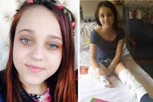 8X + 9X - Bé gái 13 tuổi muốn cắt chân vì có quá nhiều khối u