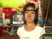 """Da liễu - Kỳ dị cô bé 8 tuổi mắc chứng bệnh """"người sói"""""""