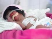 Sức khỏe đời sống - Mổ bắt con thành công cho sản phụ bị ung thư máu