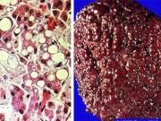 Sức khỏe đời sống - Bác sĩ giật mình với hình ảnh gan biến dạng vì rượu