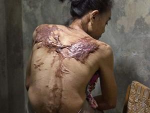 Tin tức trong ngày - Nỗi đau của những ôsin châu Á bị chủ bạo hành dã man