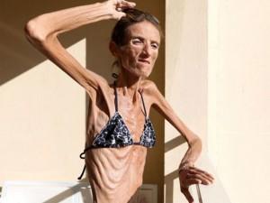 """Giảm cân - Thiếu nữ """"da bọc xương"""" mặc bikini gây xôn xao"""