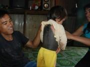 """Khoa nhi - Kỳ lạ bé gái mắc hội chứng """"người chim"""" ở Gia Lai"""