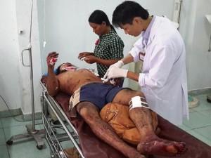 Tin tức trong ngày - Nổ đầu đạn gần trường bắn, 4 người trọng thương