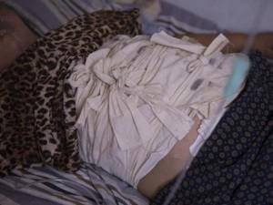 Phi thường - kỳ quặc - Người phụ nữ nuốt gần 1kg móng tay