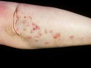 Sức khỏe đời sống - Các nguyên nhân khó ngờ gây bệnh cho da