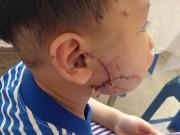 Sức khỏe đời sống - Hàng loạt trẻ nhập viện vì chó cắn